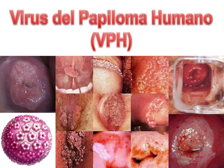Como Curar El Papiloma Humano? Mi Historia De xito FOTOS 92