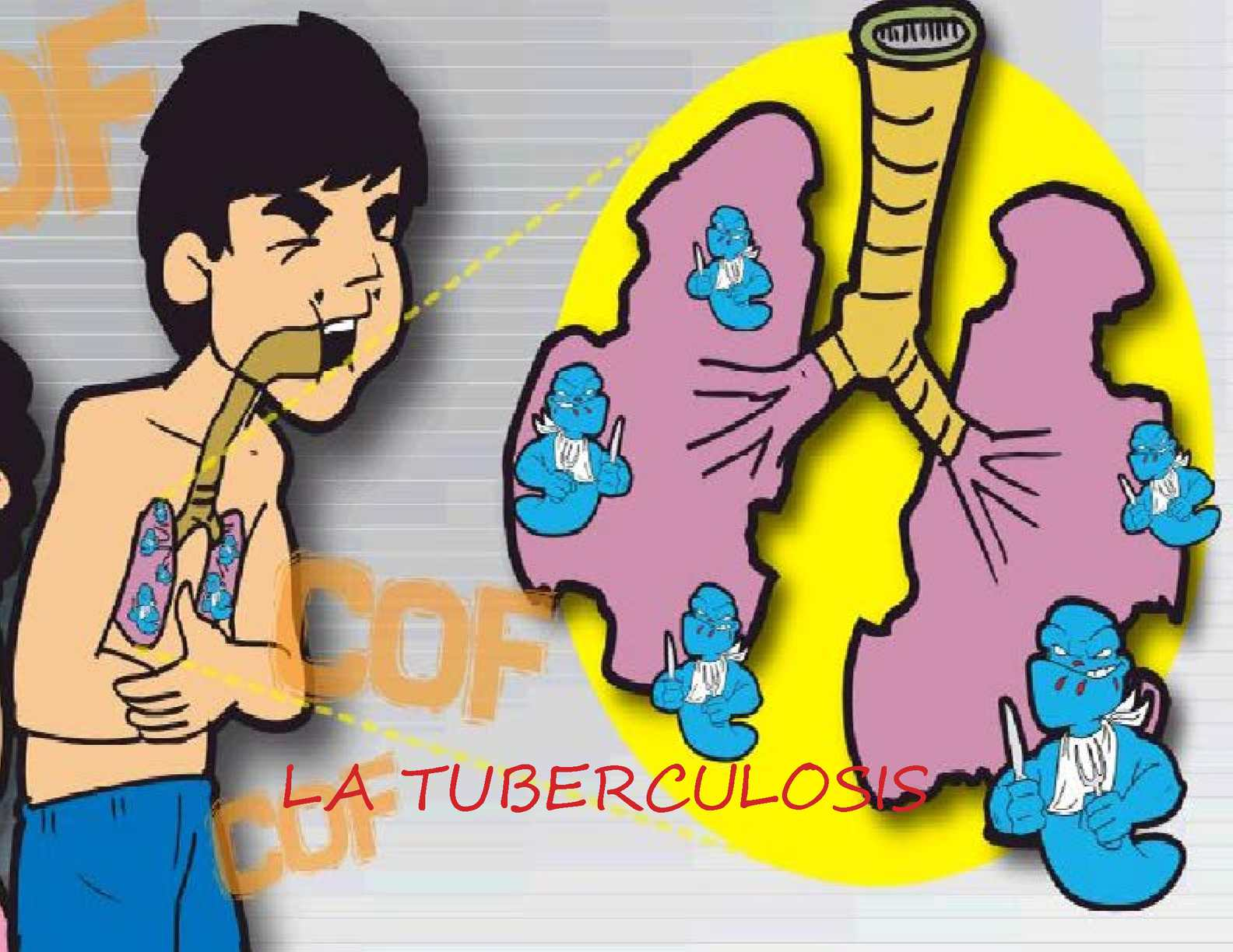a history of medical cure in tuberculosis Is tb treatable tb can be cured in almost all cases by taking the medications as prescribed without interruption inform the doctor of your past medical history and about any medications you are taking take your medications as directed.