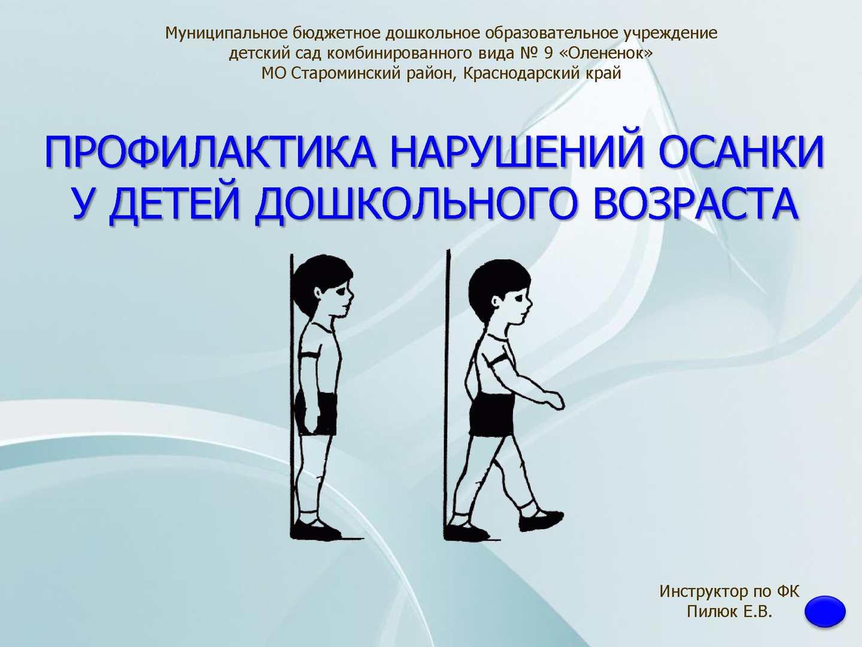 Осанка у детей дошкольного возраста фото