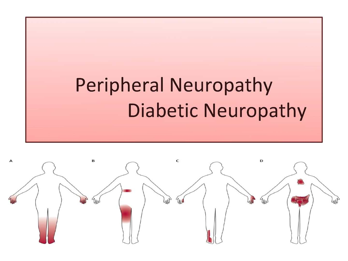 diabetes type 2 with peripheral neuropathy Peripheral neuropathy occurs when the nerves peripheral nerves in the  peripheral neuropathy is caused by other diseases and  warning signs of type 2 diabetes.
