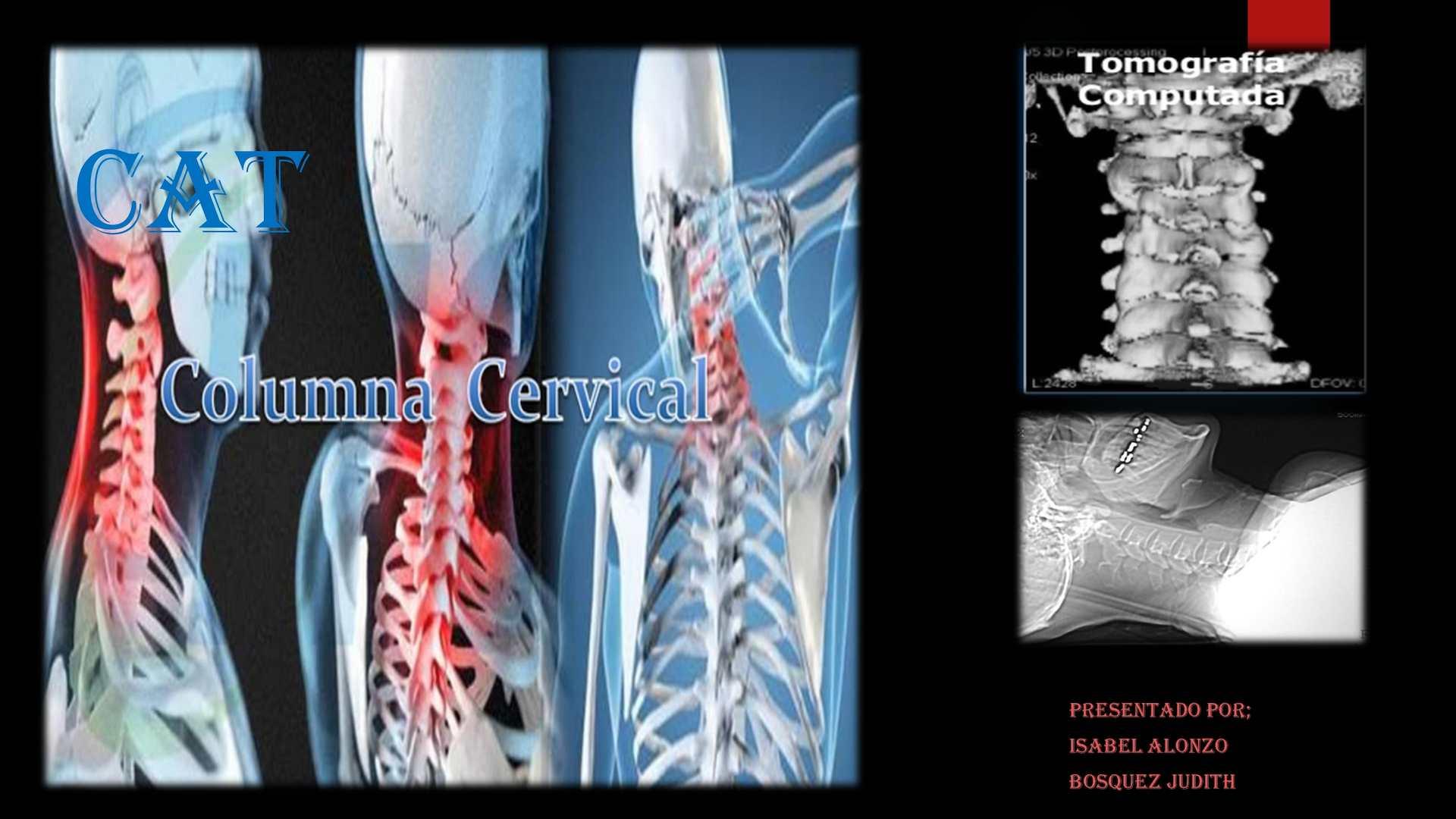 Calaméo - Comografia Computada De Columna Cervical