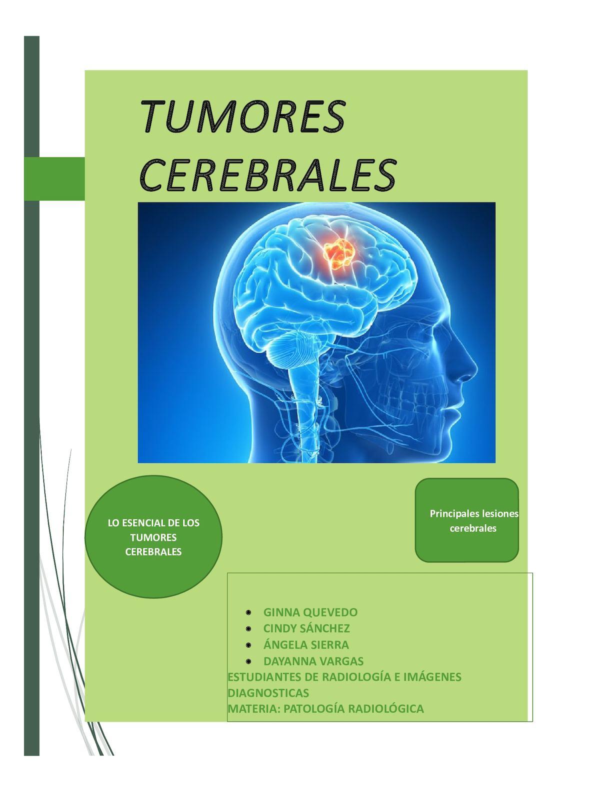 Calaméo - Tumores Cerebrales