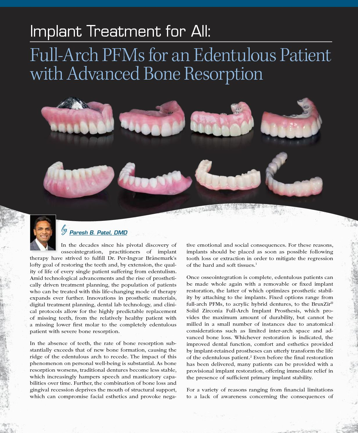 Calaméo - Full-archs PFMs for an etendulous patient with advanced ...