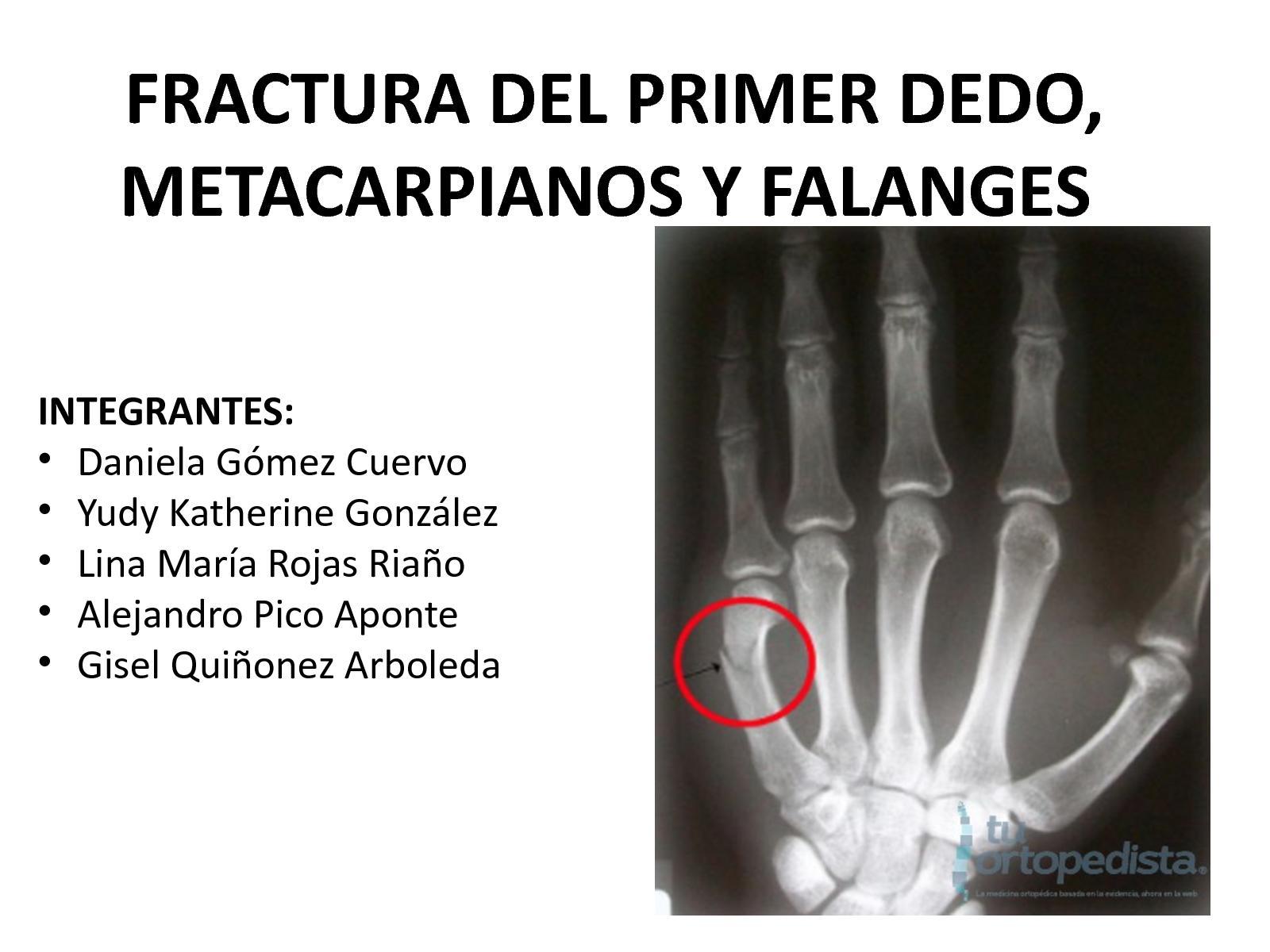 Calaméo - Presentación Fracturas Metacarpianos