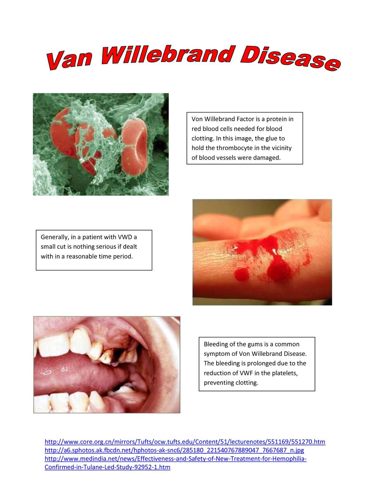 Remarkable, rather van willebrand disease facial features excellent