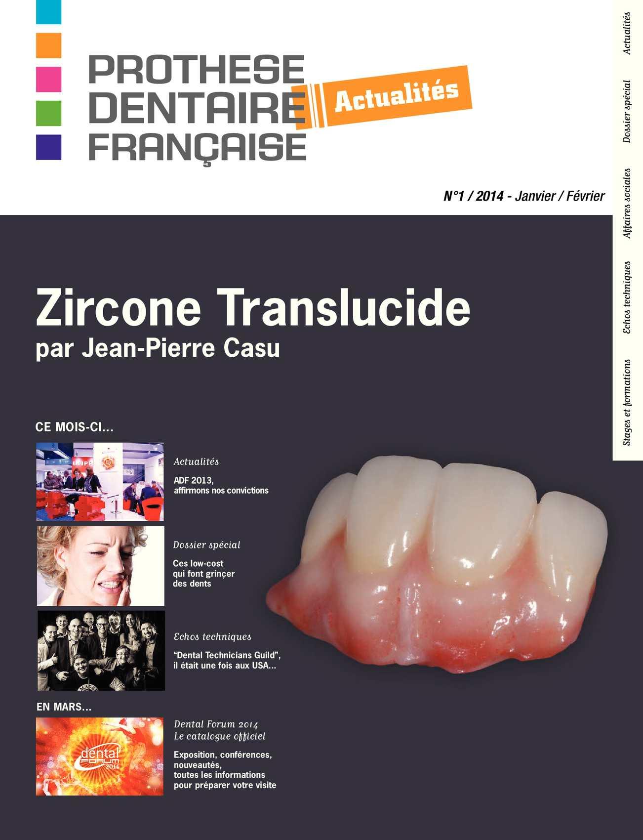 17fdbbd629c5cb Calaméo - Prothèse Dentaire Française Actualités N°1 2014