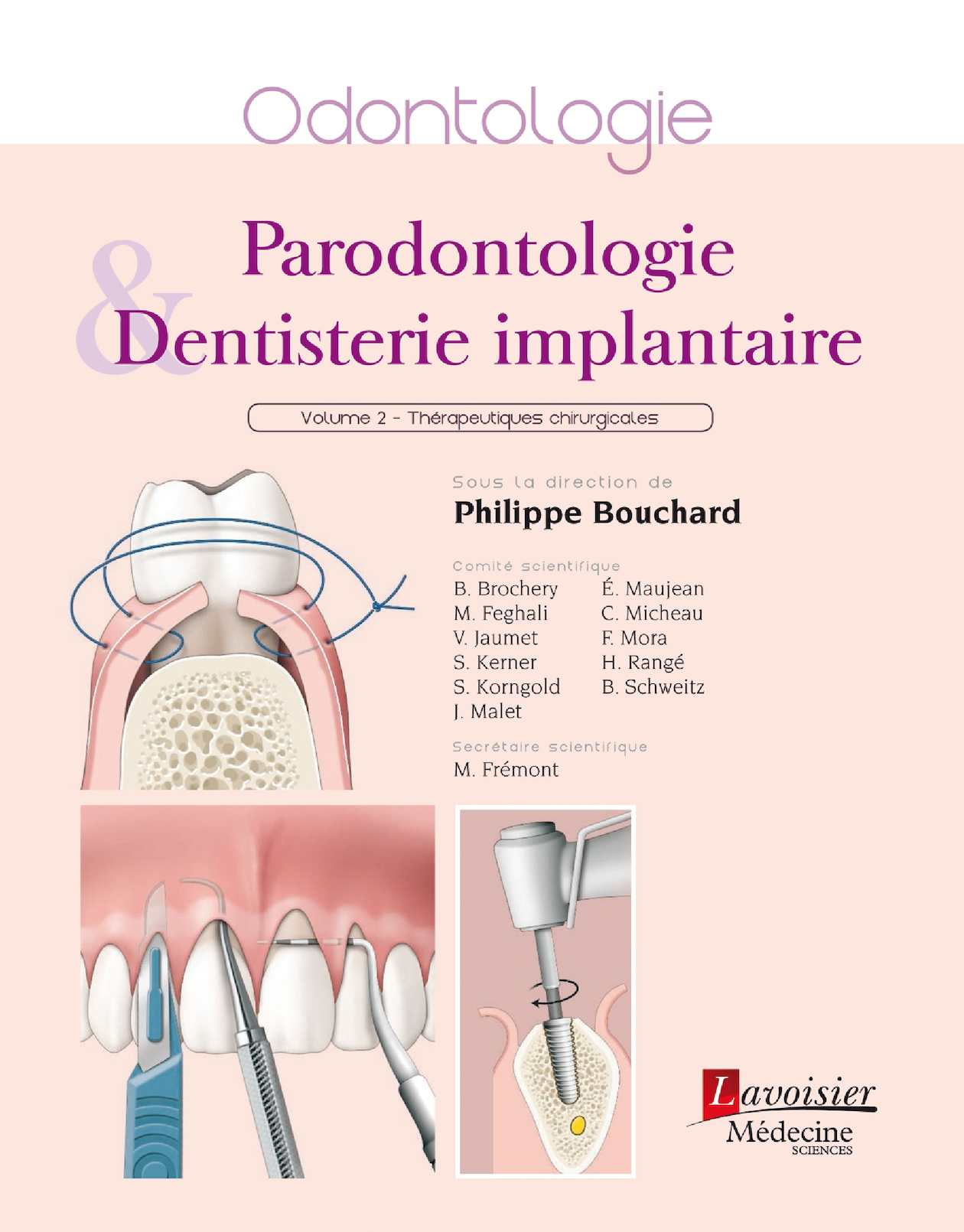 Parodontologie & dentisterie implantaire - Volume 2 : Thérapeutiques chirurgicales, BOUCHARD Philippe, pages liminaires