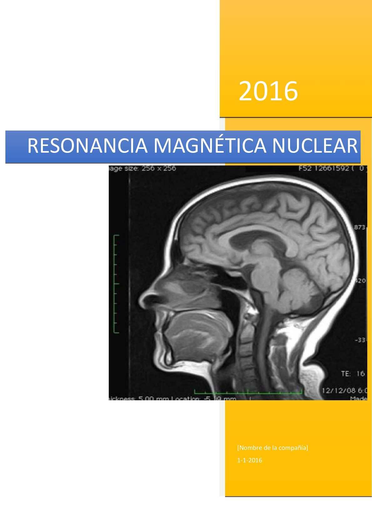 Por vasos enfermedad de cardíaca pequeños resonancia magnética