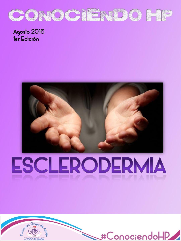Hipertensión y esclerodermia