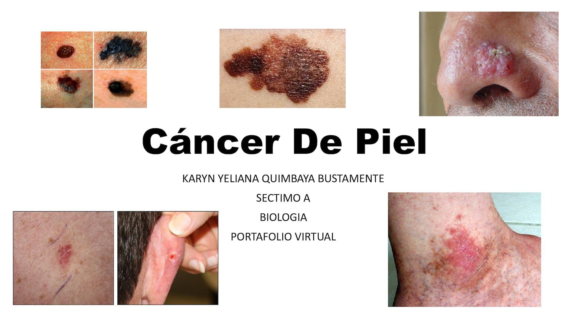 cancer a la piel imagenes