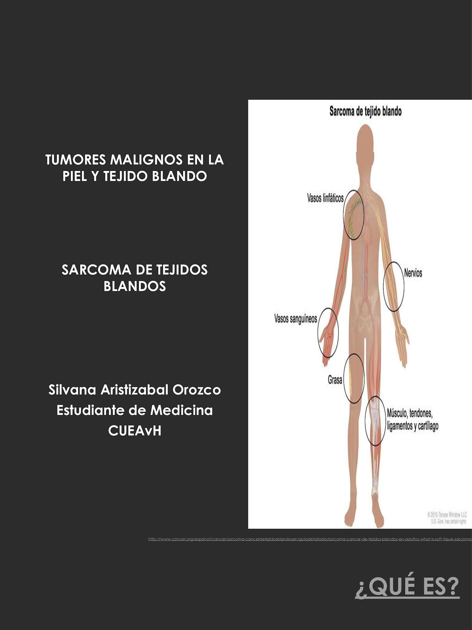 cancer sarcoma tipos