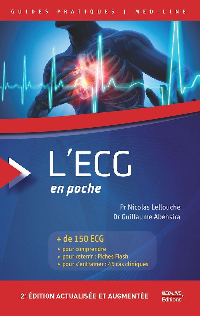 L'ECG en poche - 2e édition actualisée