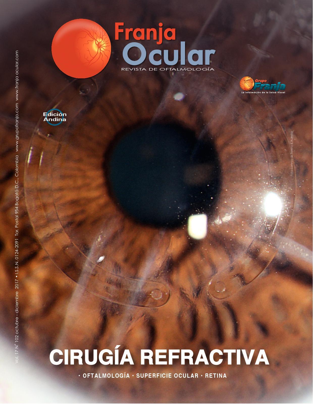 diabetes retiniana para escaneo ocular