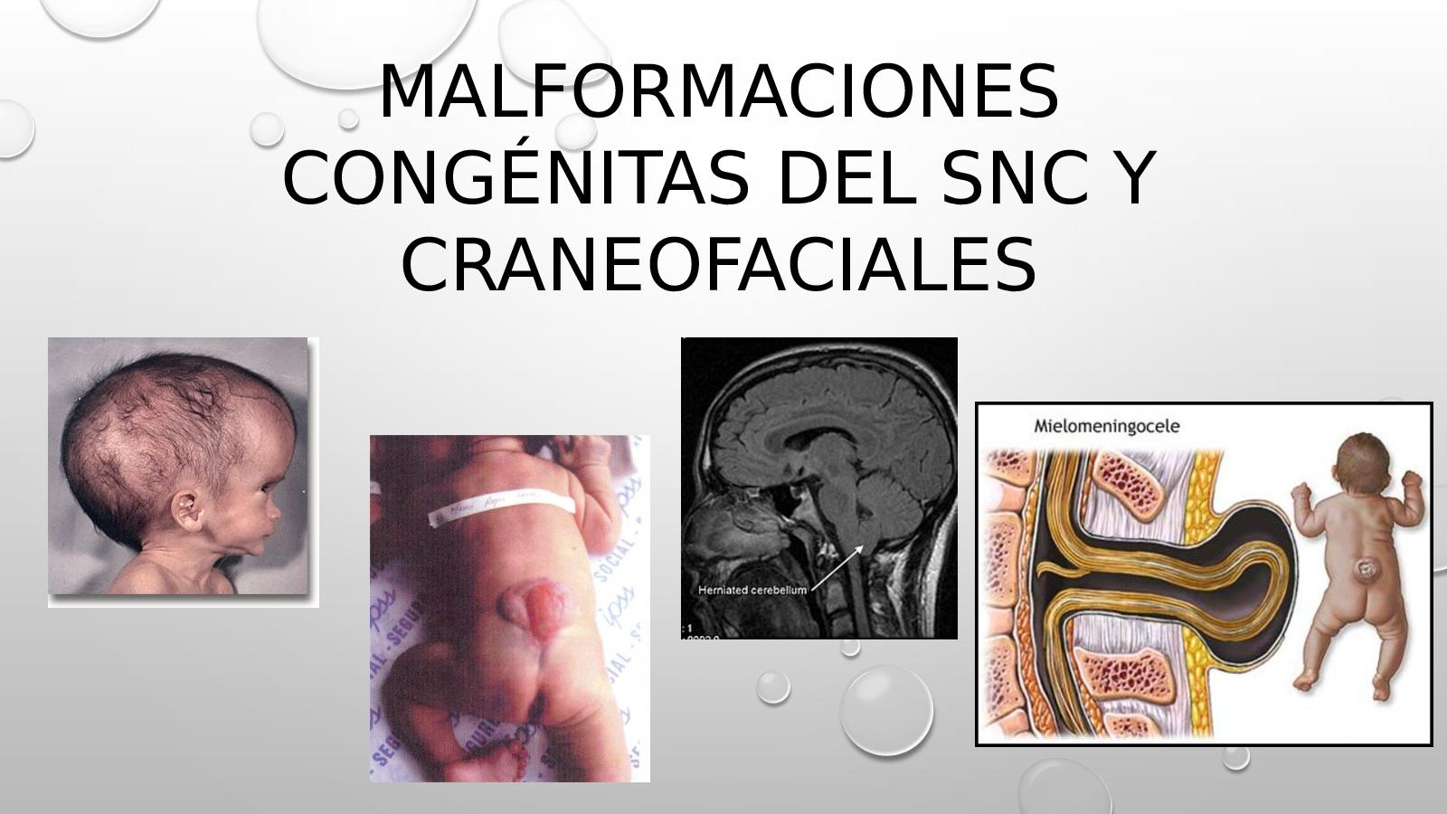 Causas genéticas de hidrocefalia congénita