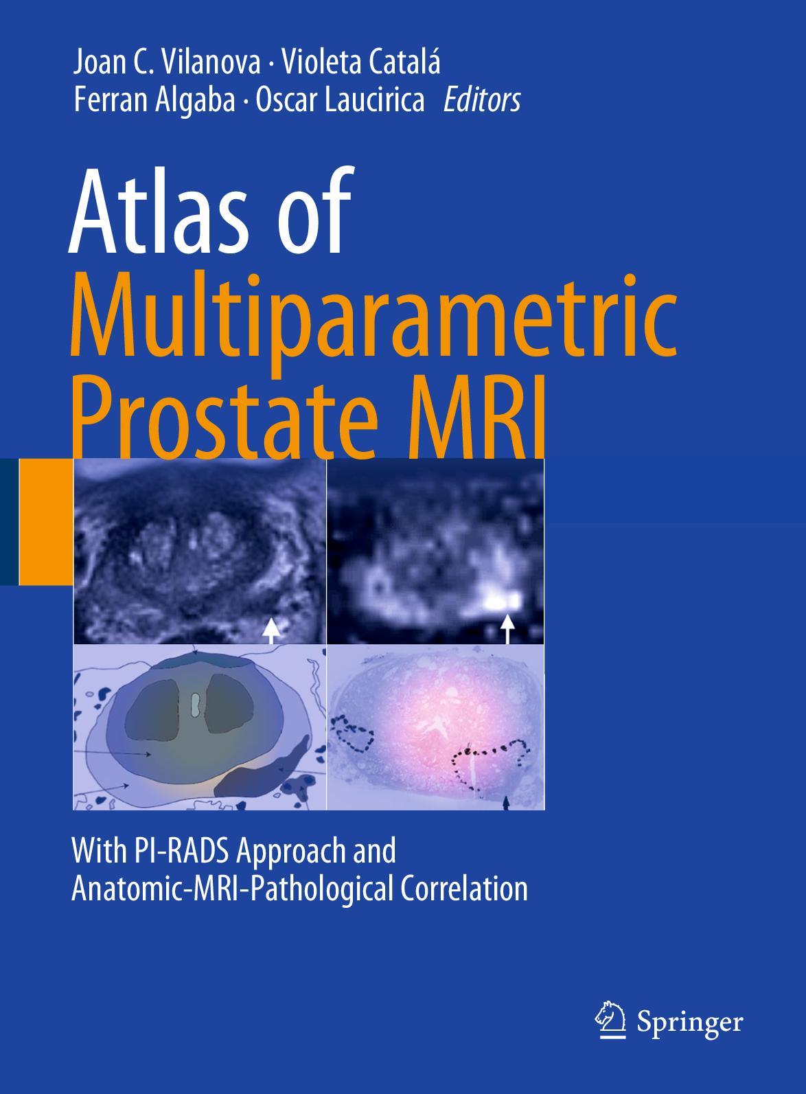 adenocarcinoma de próstata 3+ 3