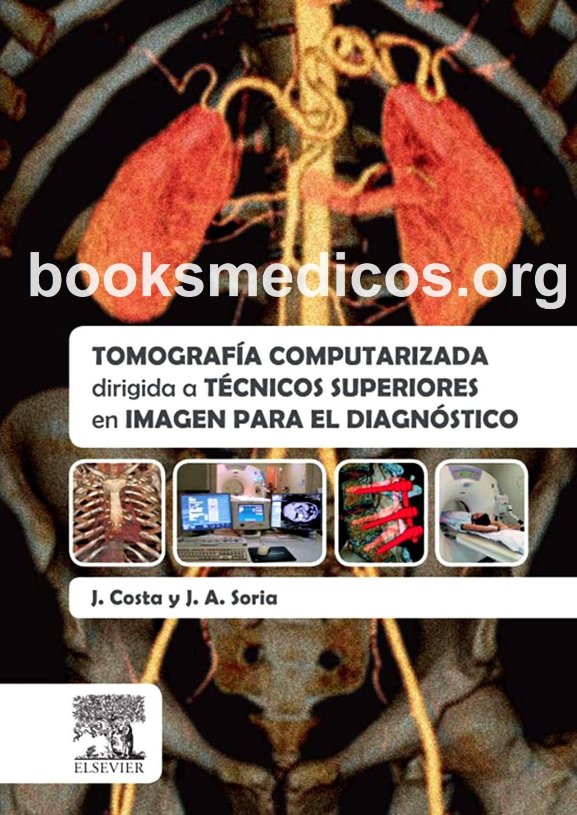 Lectura de tomografía computarizada con contraste para metástasis de próstata