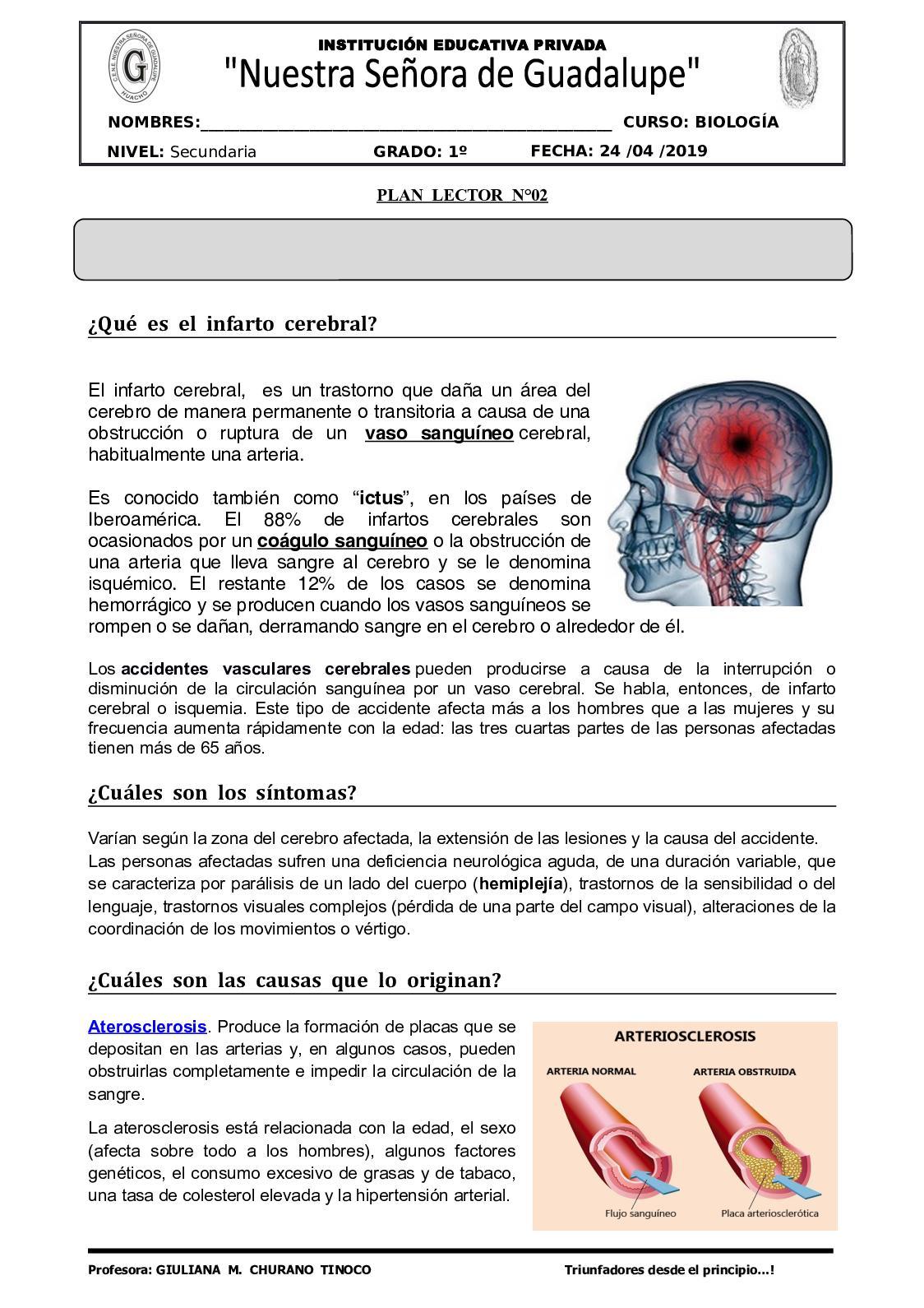 ¿Cómo afecta la hipertensión a los vasos cerebrales?