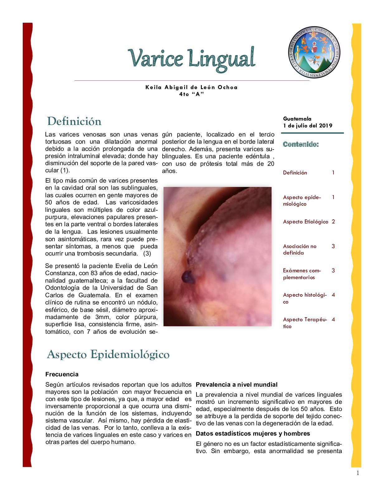 varicoză în partea laterală)