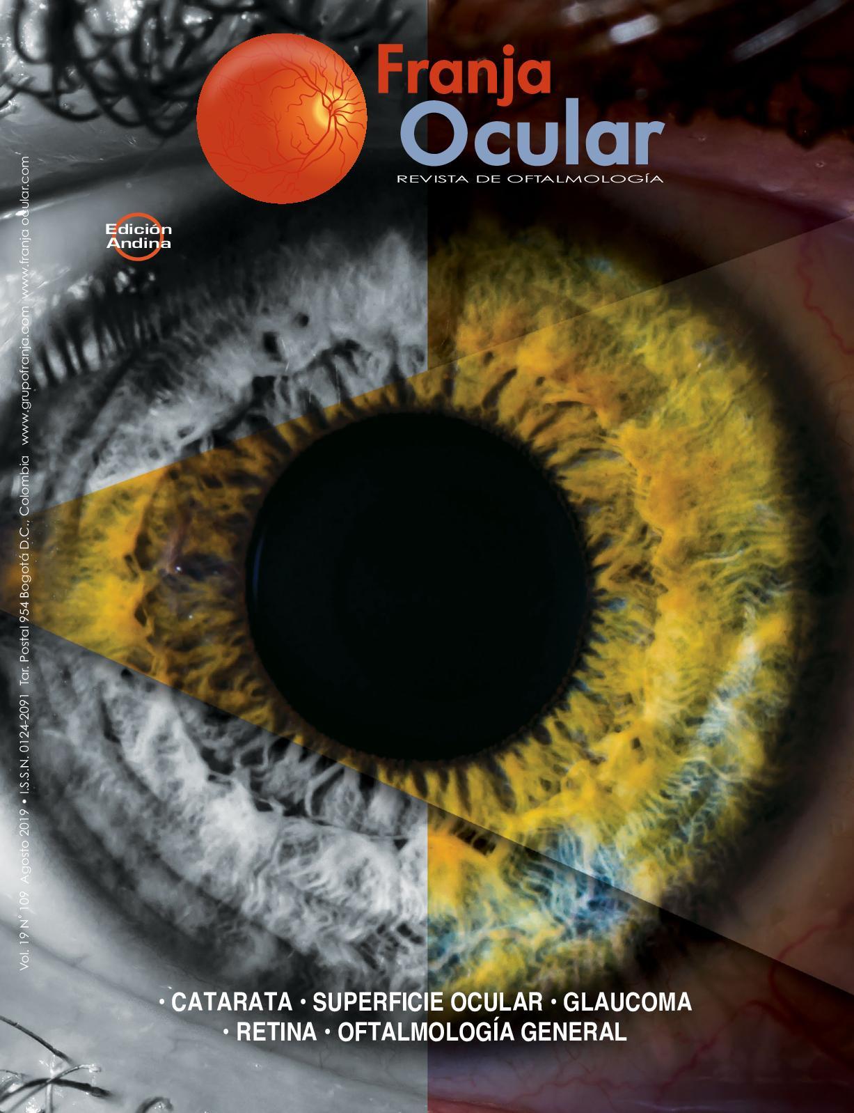Examen de topografia hipertension ocular